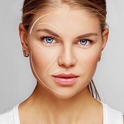 lifting facial sin cirugia con hilos tensores - clinica dual