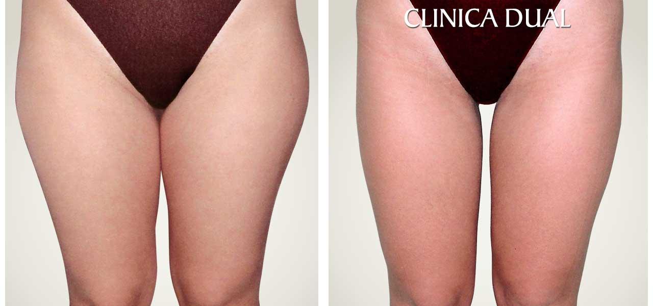 Fotos de antes y después de una Liposucción - Vista frontal - Clínica Dual Valencia