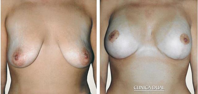 operacion de pecho caido img - clinica dual