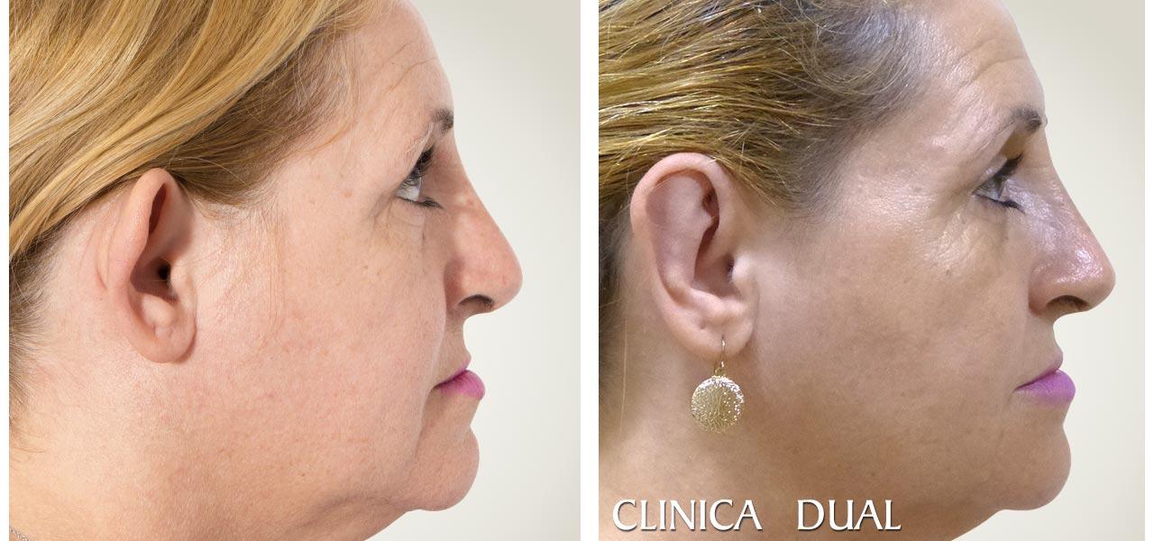 Otoplastia - Fotos antes y después de una operación de orejas - vista lateral ı Clínica Dual