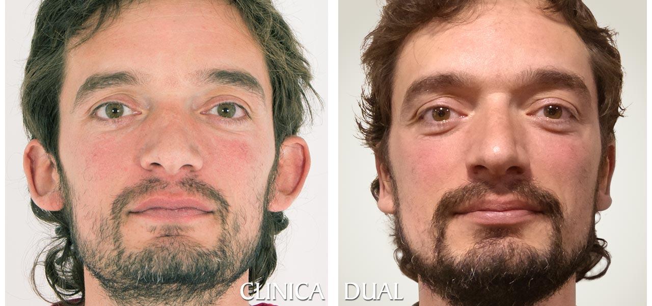 Otoplastia - Fotos antes y después de una operación de orejas - vista frontal | Clínica Dual
