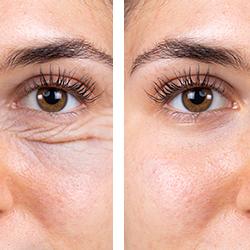que son y como eliminar bolsas bajo los ojos - clinica dual