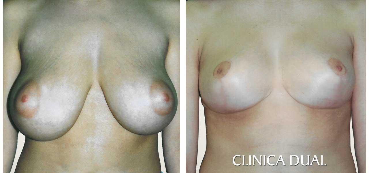 Fotos de antes y después de una Reducción de Pechos - Vista frontal - Clínica Dual Valencia
