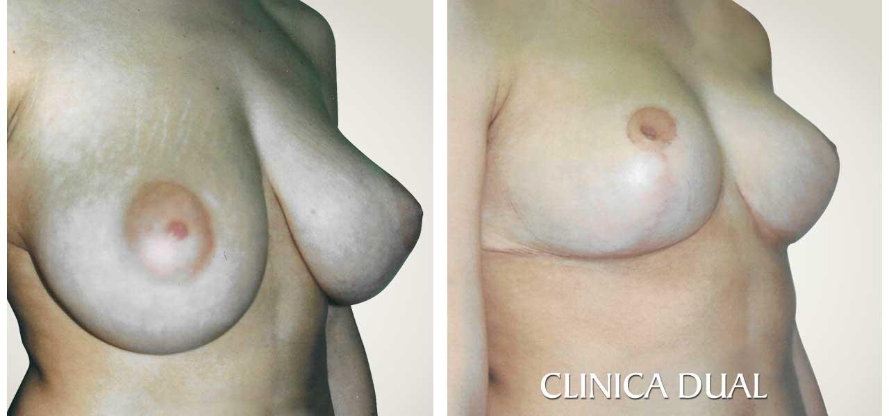 Fotos de antes y después de una Reducción de Pechos - Vista de medio lado - Clínica Dual Valencia