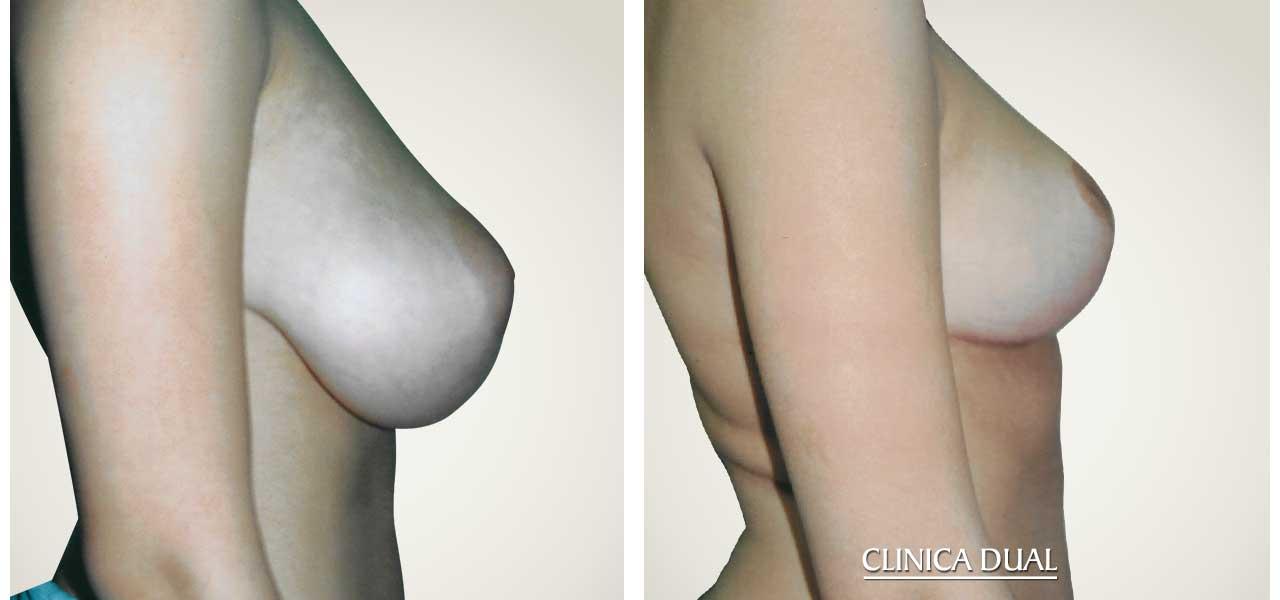Fotos de antes y después de una Reducción de Pechos - Vista de perfil - Clínica Dual Valencia
