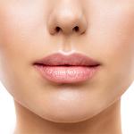 relleno de labios - clinica dual