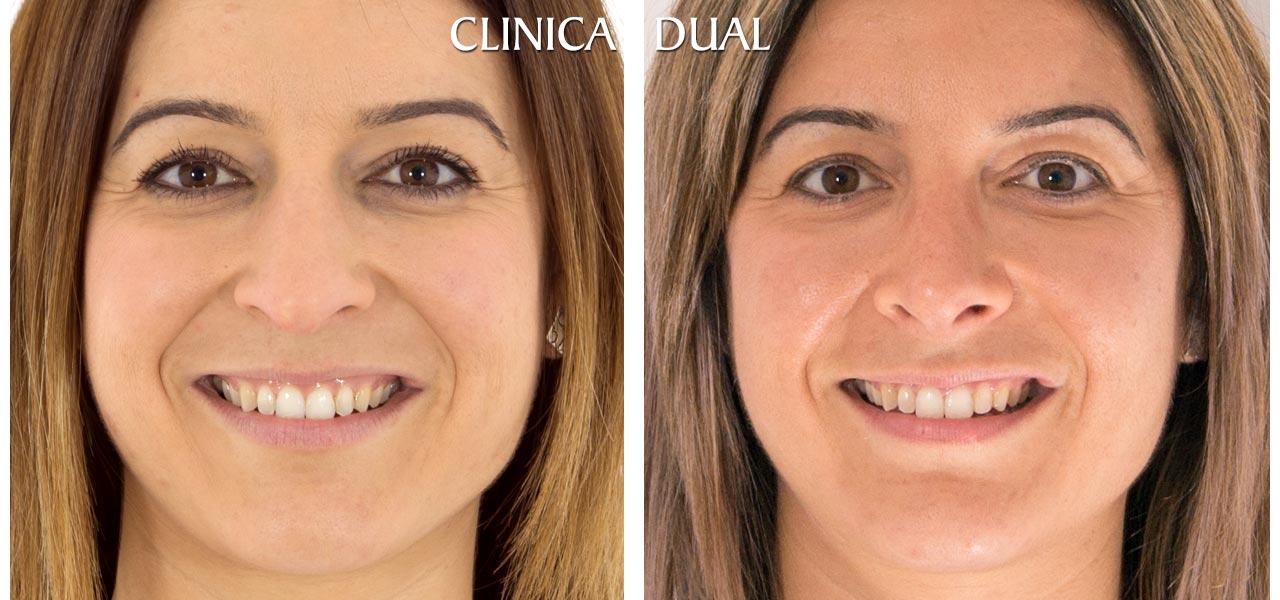 Fotos de antes y después de una Rinoplastia de nariz - Vista frontal | Clínica Dual Valencia