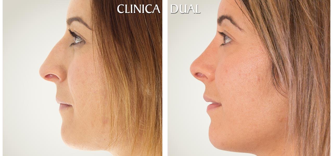 Fotos de antes y después de una Rinoplastia de nariz - Vista de perfil | Clínica Dual Valencia