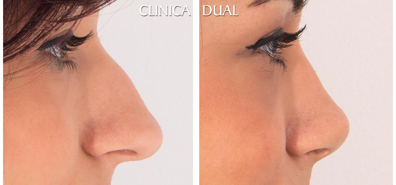 Fotos de antes y después de una Rinoplastia u operación de nariz - Vista lateral | Clínica Dual Valencia
