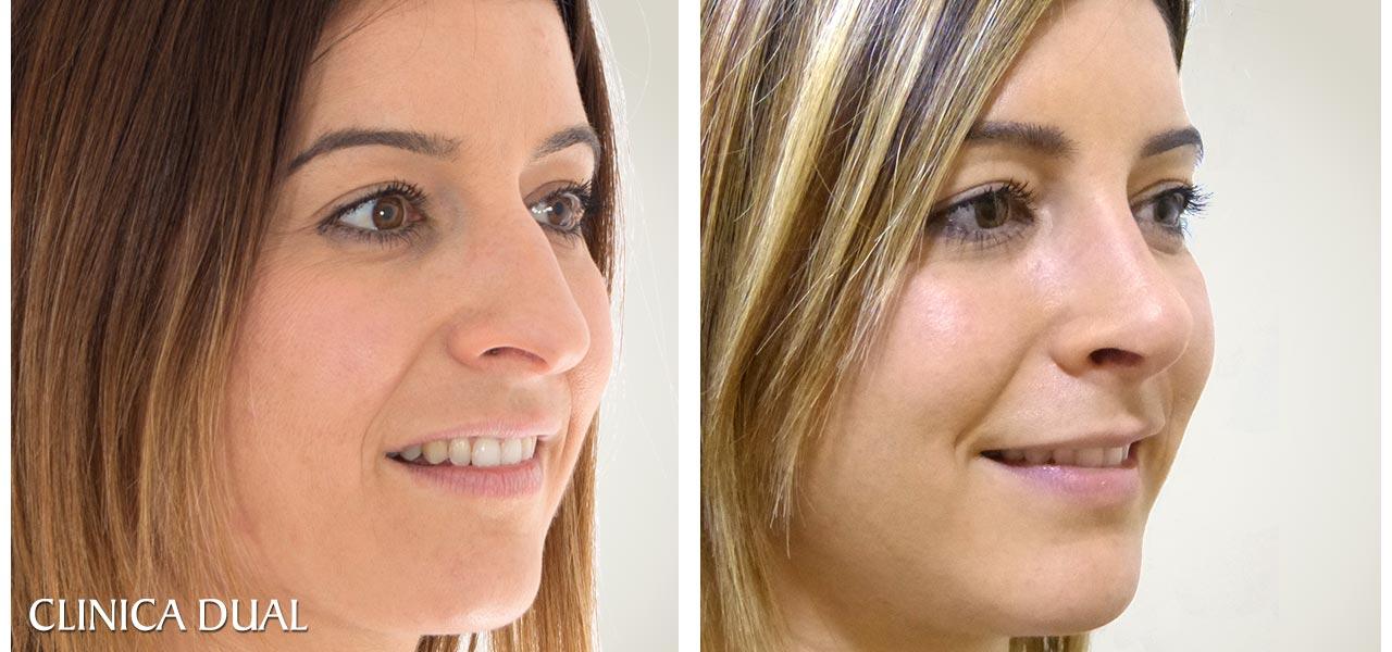 Fotos de antes y después de una Rinoplastia de nariz - Vista de medio lado | Clínica Dual Valencia