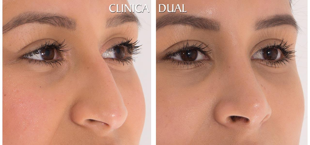 Fotos de antes y después de una Rinoplastia u operación de nariz - Vista medio lado | Clínica Dual Valencia