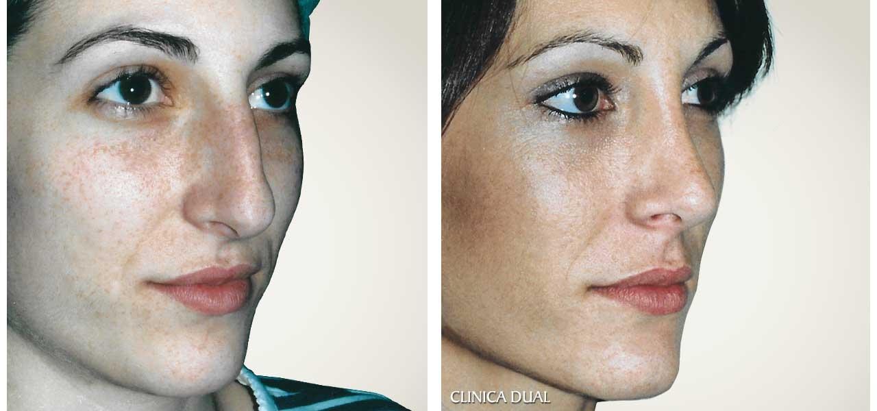 Fotos de antes y después de una Rinoplastia de nariz - Vista de medio lado - Clínica Dual Valencia