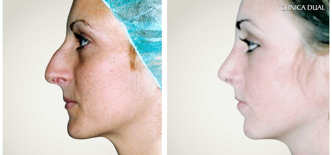 Fotos de antes y después de una Rinoplastia de nariz - Vista de perfil - Clínica Dual Valencia