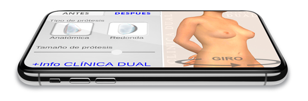 3D Breast Augmentation Simulator App